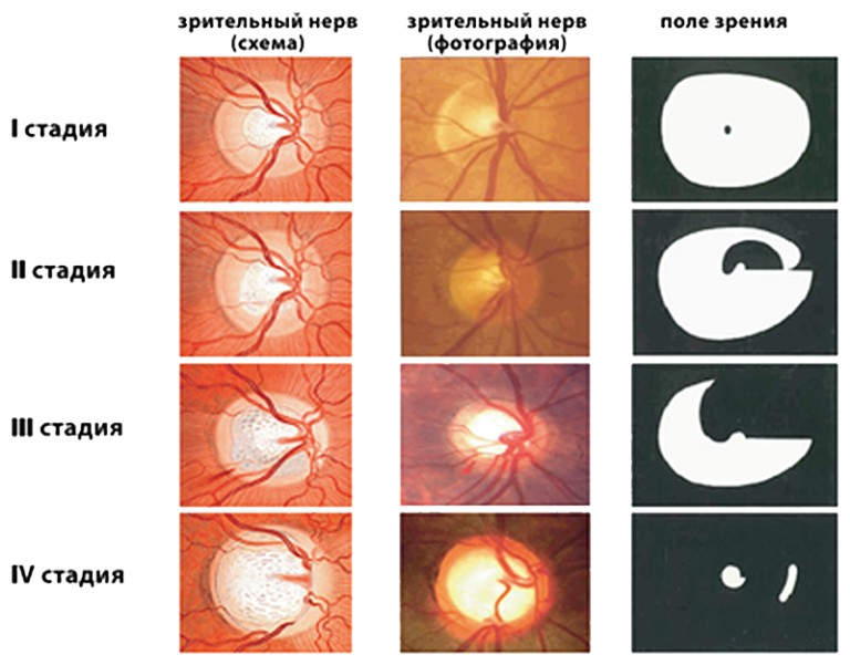 Диагностирована открытоугольная глаукома? Знакомимся с заболеванием