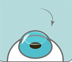 Что такое коррекция зрения?