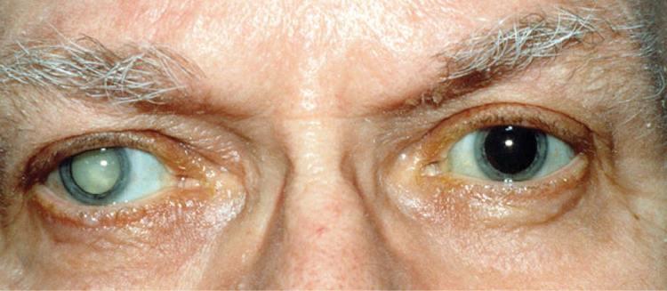 Лечение катаракты глаза операция цена