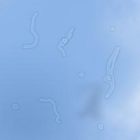 «Летающие мушки, плавающие ниточки» перед глазами. Насколько это опасно?